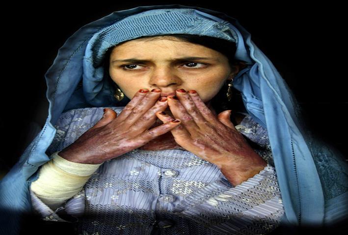 امرأة أفغانية تعاني حروقًا بسبب القصف في أحد مستشفيات حرات