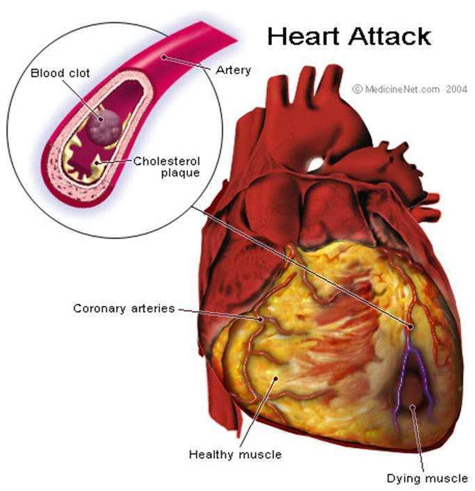 أمراض القلب الإفقارية
