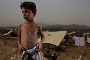 المجاعة