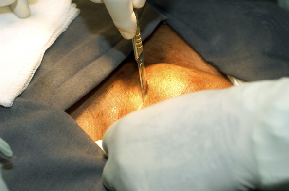 Thyroidectomy. Surgeon makes the initial incision, during a thyroid lobectomy. Sudan, Africa.