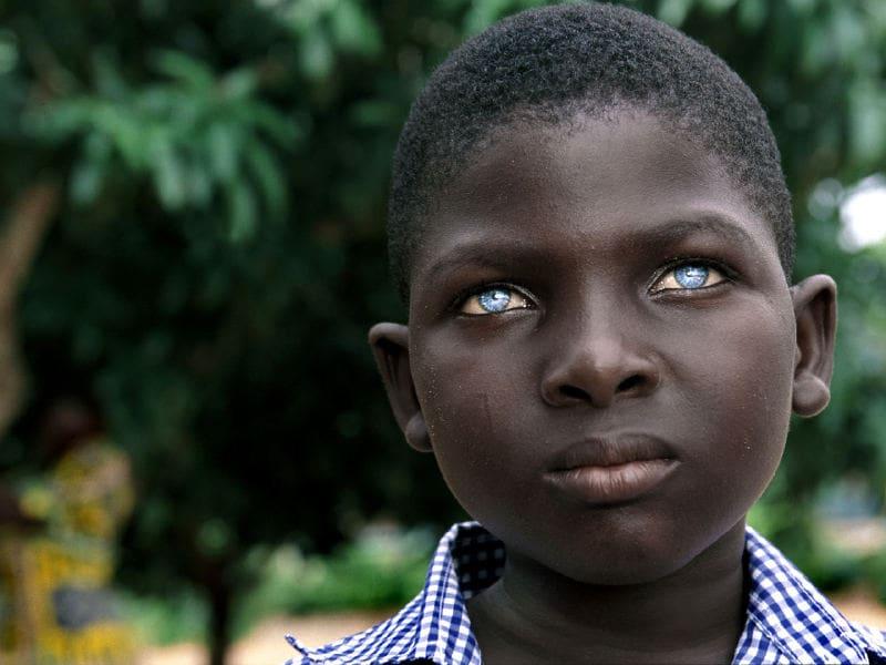 أعين زرقاء