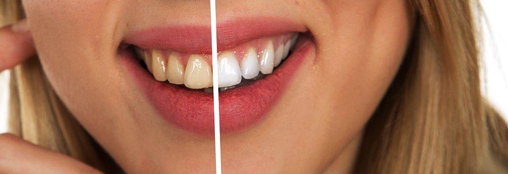 السائل المنوي لأسنان بيضاء